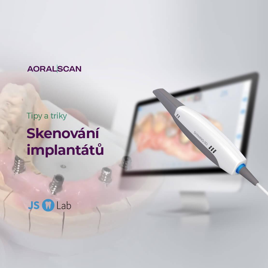 Skenování implantátů